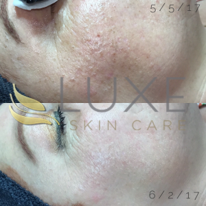 Causes of acne - Before and After Face Reality